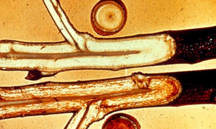 Verticillium wilt in cotton stem